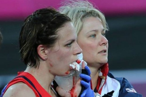 Brave Kate Walsh after being struck in the face during the Olympics, breaking her jaw. She was back playing within days